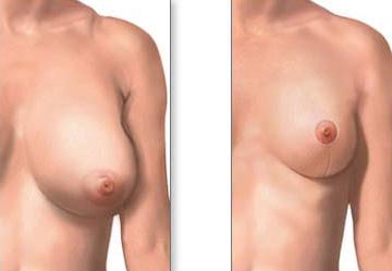 Удаление одного импланта с груди